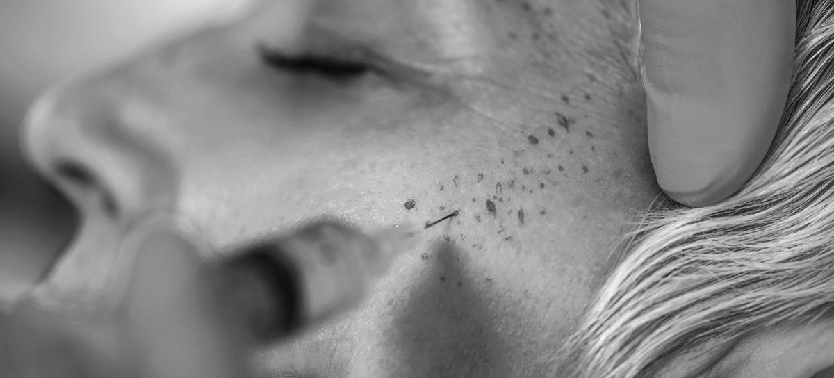 Mezoterapi | Levent Aydar